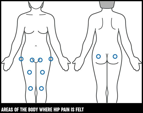 Hip pain | Causes, exercises, treatments | Versus Arthritis