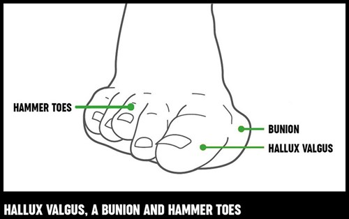 A diagram of a foot showing what hallux valgus, a bunion and hammer toes looks like.