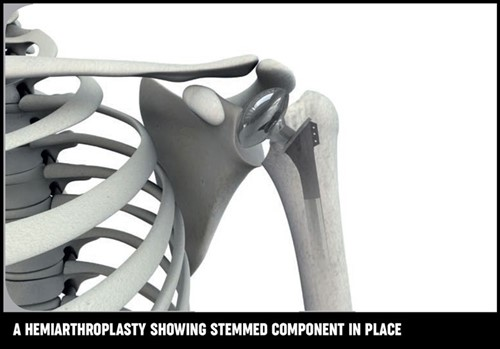 An illustrations of the shoulder joint which has had hemiarthroplasty showing stemmed component in place.