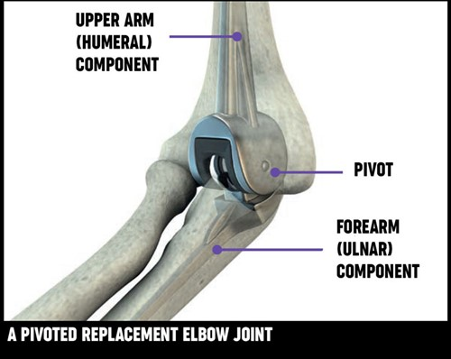 A diagram of an elbow joint which has had pivoted replacement surgery.