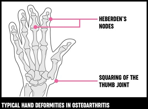 An illustration of typical hand deformities that can be caused by osteoarthritis.
