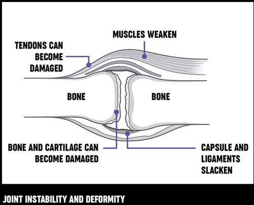 An illustration of what happens to structures in a joint when it develops arthritis and becomes damaged.