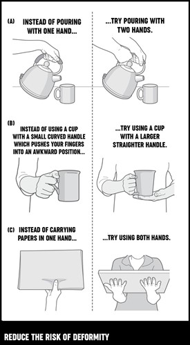 An illustration on how to hold everyday objects to reduce the risk ofdeformity.