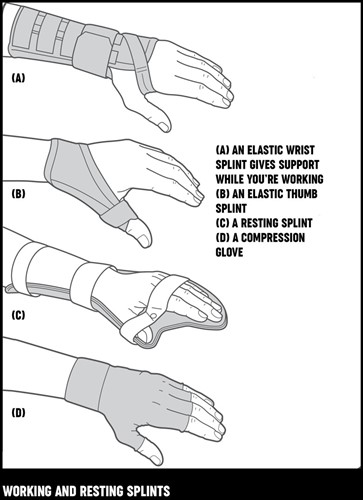 An illustration of different types of working and resting splints for hands and wrists.