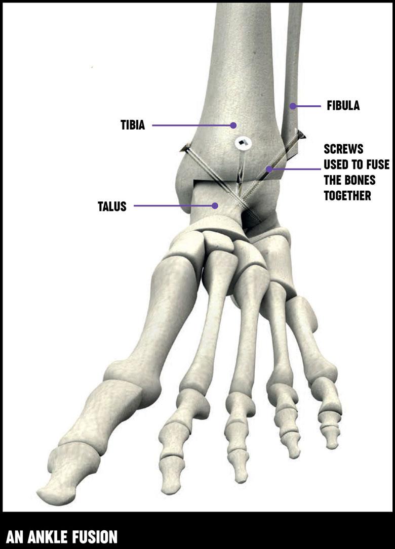 Ankle Bone Graft Topsimages