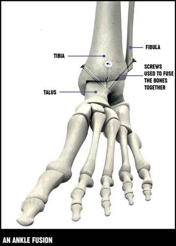 A diagram showing the placement of the screws in the foot and ankle bones for an ankle fusion.