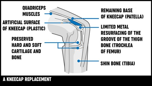 An illustration of a knee cap replacement from the side.