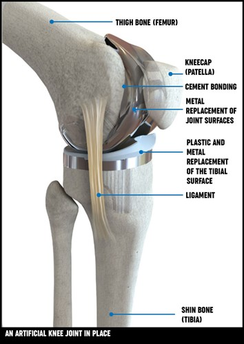 An illustration of an artificial knee joint in place.