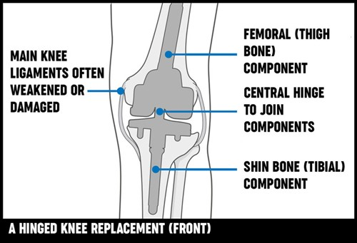 A diagram of a hinged knee replacement, showing the new joint and remaining bone.