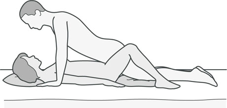 An illustration of a sexual position that's good if either partner has hip problems or a hip replacement.