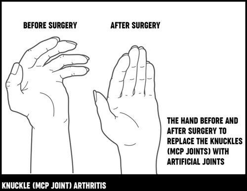 A diagram showing how a hand may look after knuckle replacement surgery.