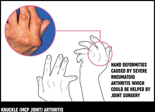 A diagram and photograph showing the hand deformities caused by severe rheumatoid arthritis.