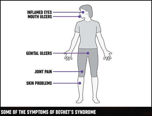 A diagram of the different areas of the body the symptoms of Behçet's syndrome can be seen.
