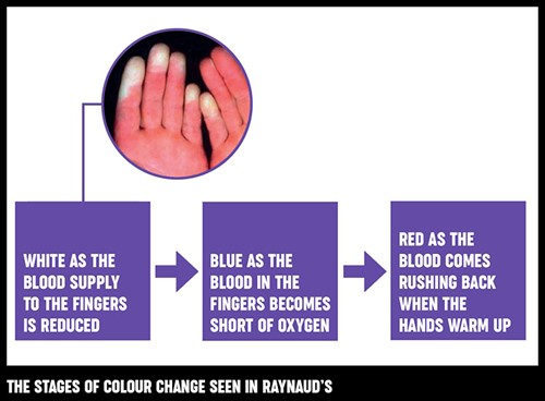 An infographic and photograph showing the ddifferent stages of colour change seen in Raynaud's phenomenon.