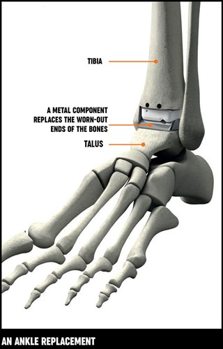 A diagram showing the placement of the metal component which replaces the worn-out end of bones in an ankle replacement.