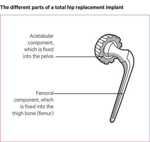 The different parts of a total hip replacement implant.