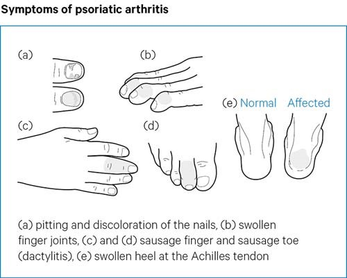 Psoriatic Arthritis Psoriatic Arthritis Causes Symptoms Treatments