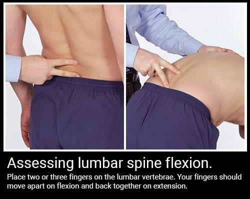 Assessing lumbar spine flexion.